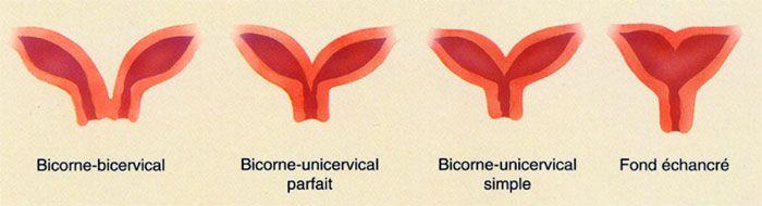 Utérus bicorne